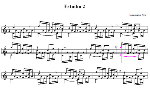 picture relating to Printable Music Notation titled Notation Computer software - Exclusive Songs Pursuits - Printing